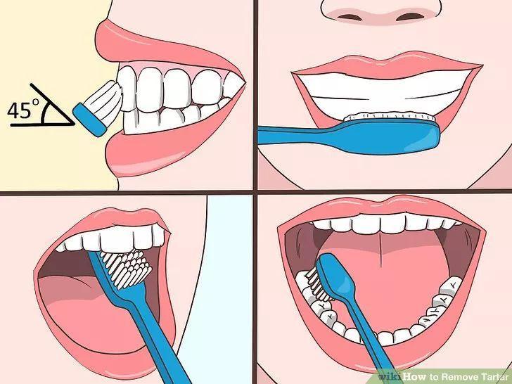 正确方法:小仙女们应做到早晚刷牙,饭后漱口,这样才能更好地保护我们