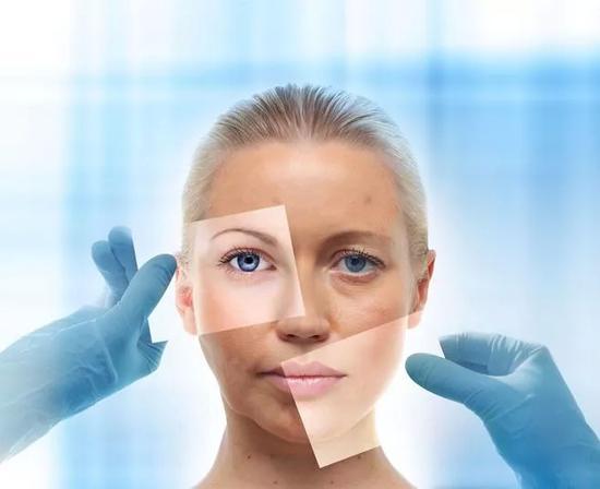 眼部脂肪粒如何去除 眼部脂肪粒怎么去除?教你6个实用的小妙招