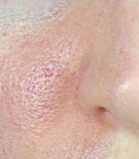 毛孔越来越粗?警惕这些信号!教你如何恢复细滑少女肌