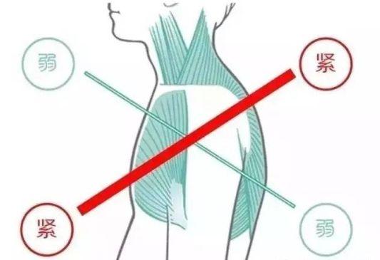 02 含胸驼背的危害 为什么我说一定要矫正含胸驼背?因为,含胸驼背的危害真的太多了!最直观的危害就是,影响你的「个人形象」。 不管你是明星还是网红,含胸驼背都会让你的体态变丑...同样的一个人,圆肩和正常,两个体态看起来实在差太多了。