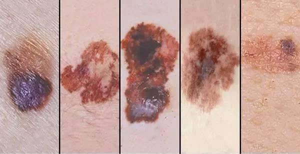 黑色素瘤早期囹�a_身体有这5种痣,其实是黑色素瘤!