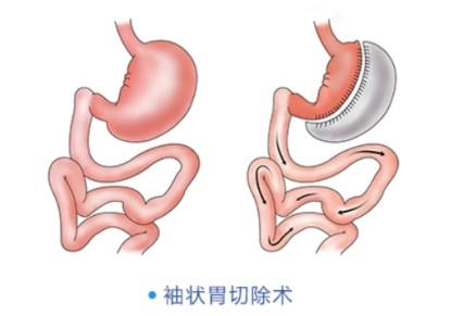 胃结构简图