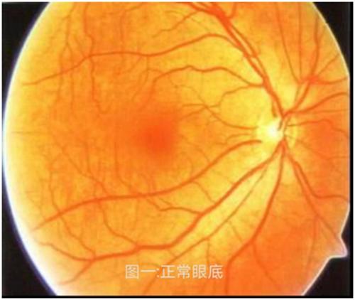 眼玻璃体混浊_全国爱眼日科普:高度近视是一种病_青岛频道_凤凰网