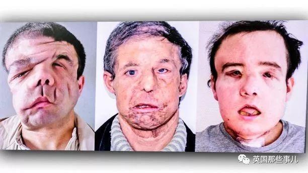 """""""有三張臉的人"""":兩次全臉移植 史上首位兩次換臉的人"""